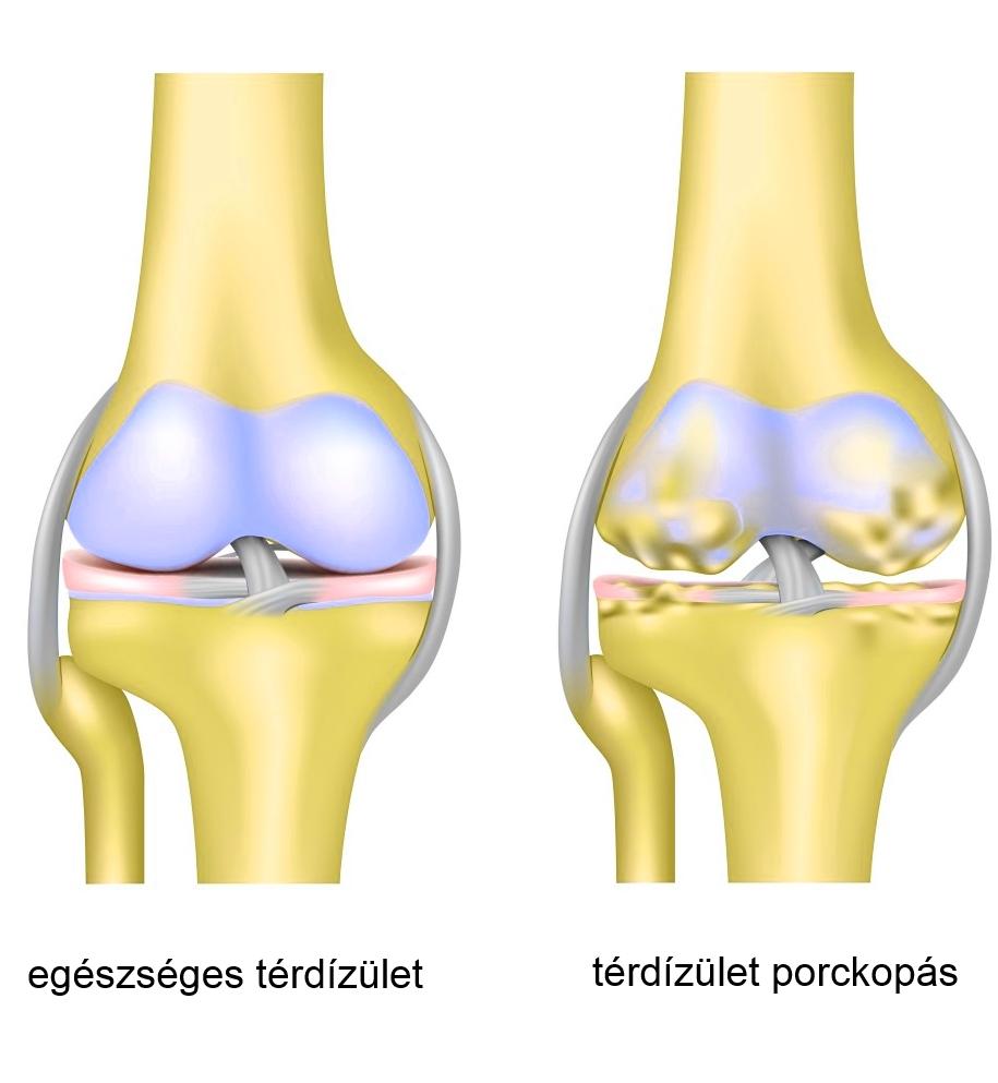 térdízületi kezelés külföldön tabletták és kenőcsök ízületi fájdalmak kezelésére