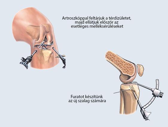 Térdsérülés: nemcsak a műtét lehet megoldás