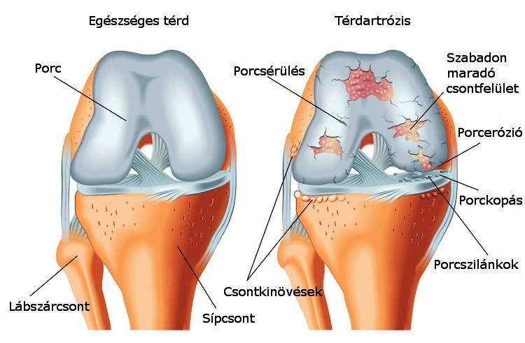 Térdszalag-sérülések