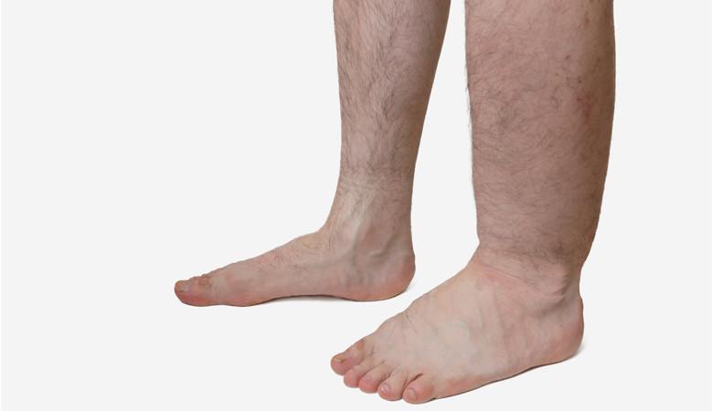 ízületek és az alsó láb fáj.