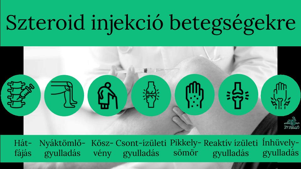 ízületi betegségek gyógyszerének áttekintése