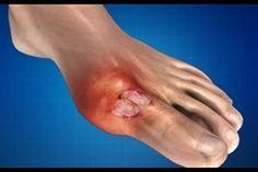 hogyan lehet kezelni a térd artritisz milyen kenőcsök csípőgyulladás hogyan kell kezelni