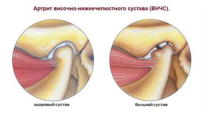 térdízületi betegség törlődik