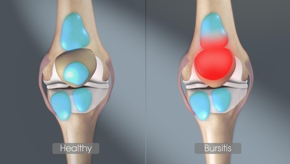 a legjobb kenőcsök az ujjak artritiszére térd és csípő ízületi fájdalma