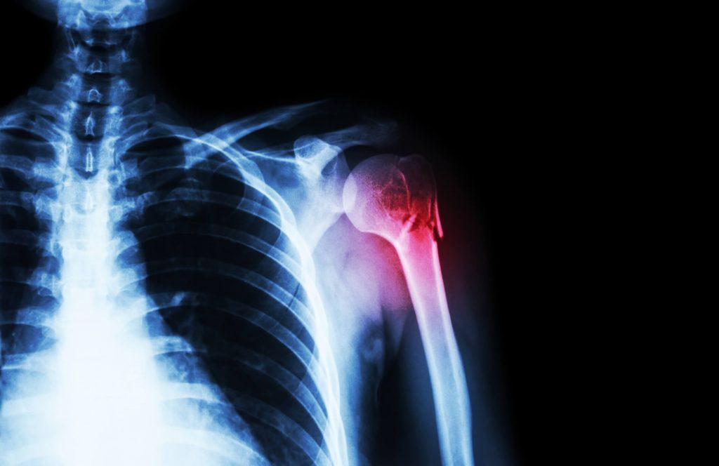 blokkolja a vállízület fájdalmát, mi az