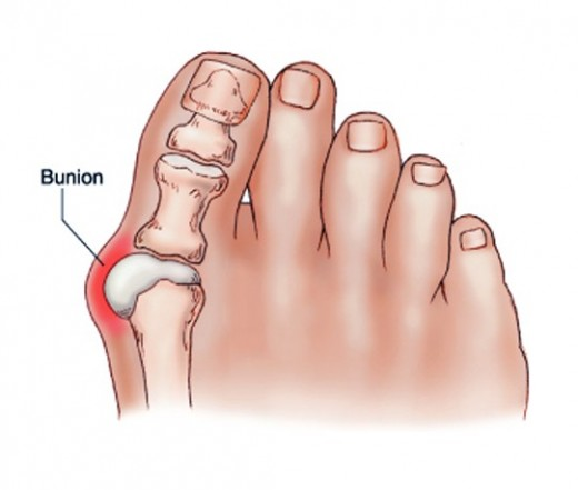 a nagy lábujj második ízületének gyulladása a végtagok ízületei artrózisa
