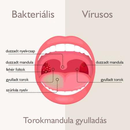 A krónikus mandulagyulladás tünetei és kezelése