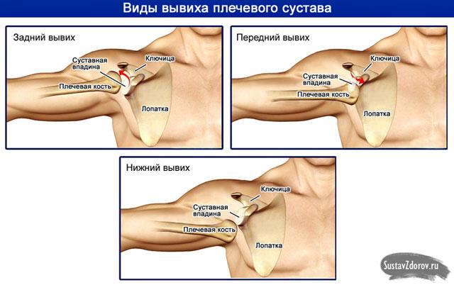 a vállízület készítmények deformáló osteoarthrosisának kezelése