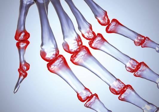 Melyik orvos szakember kezeli az ízületeket és a csontokat, blokkol - Kár