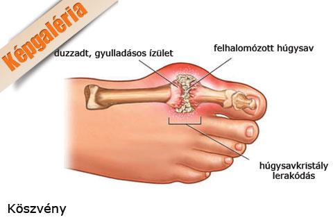 nagy lábujjgyulladás a középső lábujj ízületi fájdalma