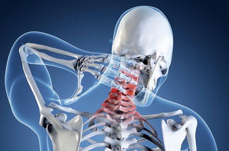 kenőcsök nyaki osteochondrozis listájához