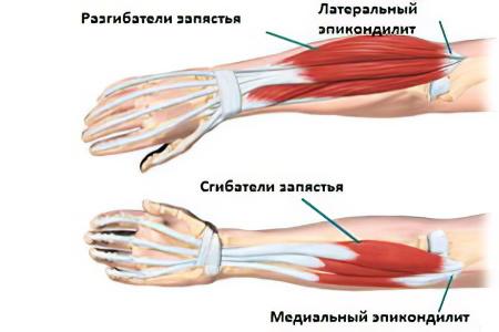 a kezére esett fáj a könyökízület)