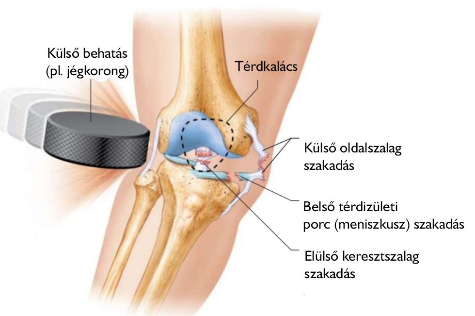 a lábak kis ízületeinek ízületi gyulladása
